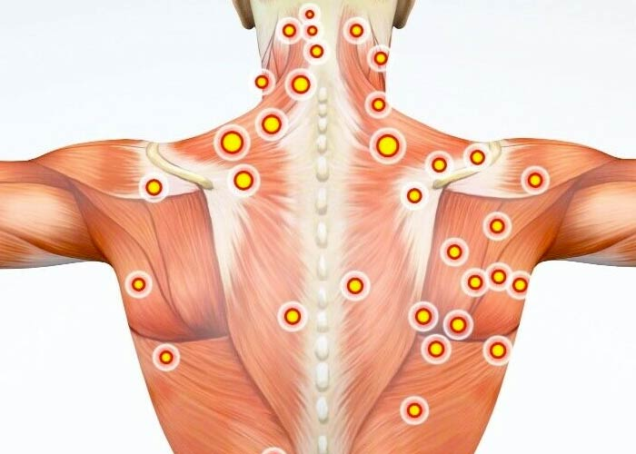 Human back with trigger points shown